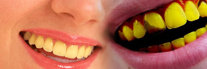 Tips Memutihkan Gigi Yang Kuning